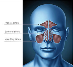 Home Medications and Treatments for Sinusitis
