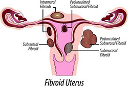 Home Medications and Treatments for Uterine Fibroids