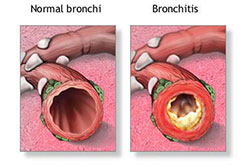 Home Medications and Cures for Bronchitis