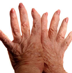 Home Medications and Treatments for Rheumatism